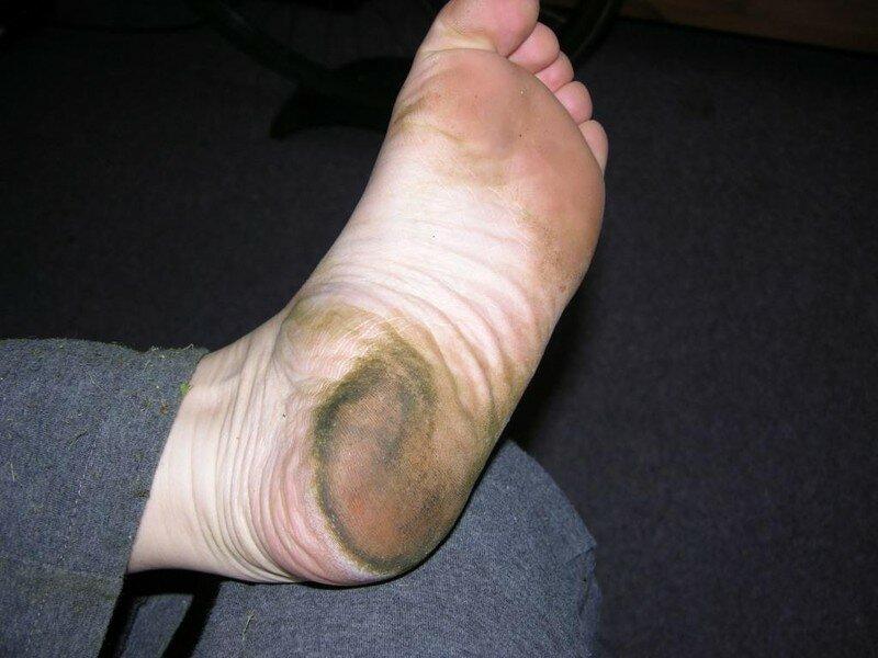 Les pieds sont enlevés à osteokhondroze