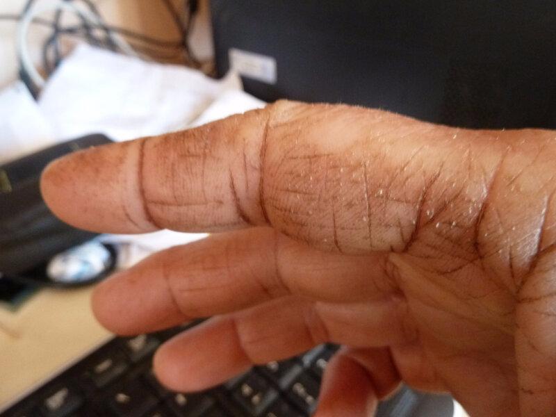 6-mains tachées