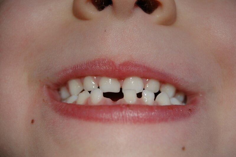 Bouche de ma fille avec sa dent en moins