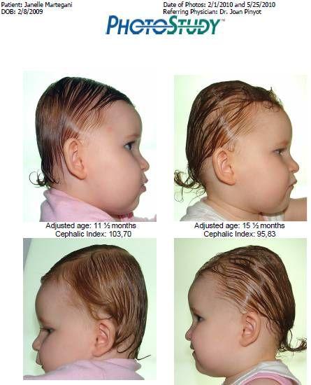 2a138854ca8e photos comparatives du Docteur Pyniot - au bonheur de Janelle (  plagiocéphalie )