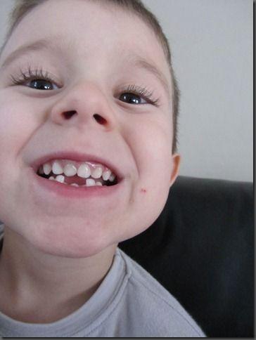 Qui c'est qui a perdu 2 dents??