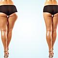 Augmentation des fesses : un postérieur à la brésilienne ? oui mesdames, c'est possible !