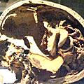 Neurologie - i